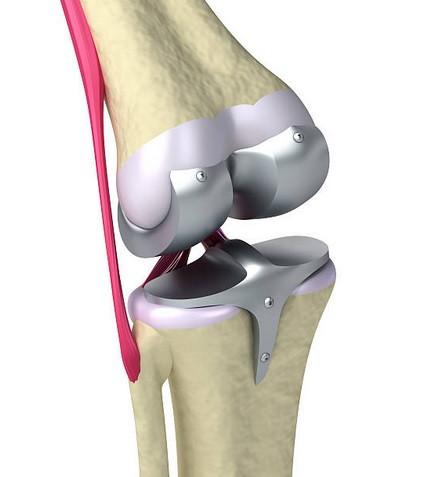Prothèse genoux