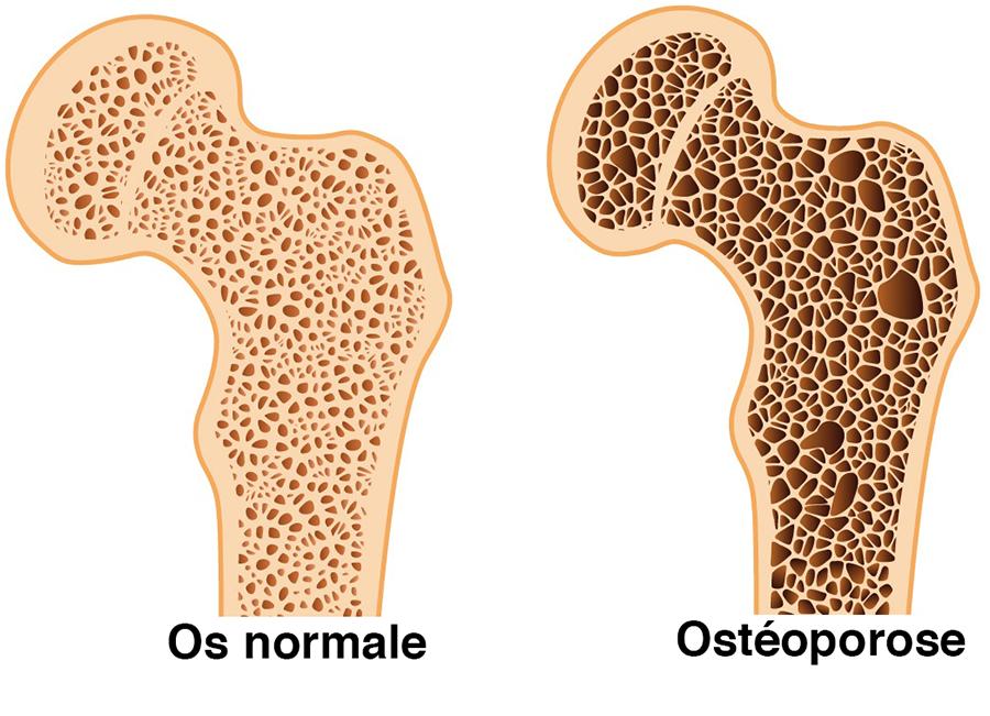 Ostéoporose - ostéopathie - Cabinet Coignières Jennifer ROFFIDAL