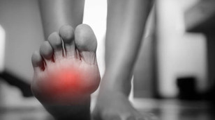 Compression nerveuse du pied | Syndrome de Morton