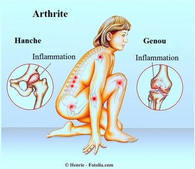 Arthrite, ostéopathie Coignières