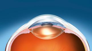 Causa principal de discapacidad visual: defectos de refracción no corregidos