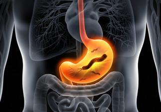 Cuidado con la Helicobacter Pylori