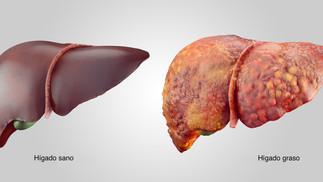 Enfermedades silenciosas como el hígado graso deben llevarnos a una mayor atención en nuestra salud,