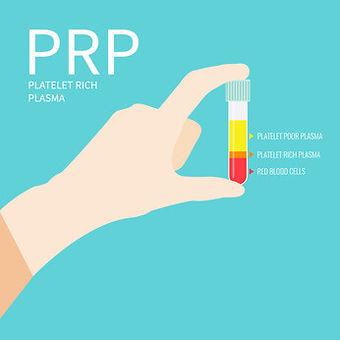 PRP.jpg
