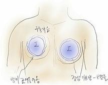 Complications Surgery.jpg