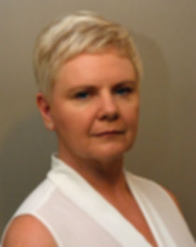anti-ageing-treatments-dalkeith-suzanne.jpg