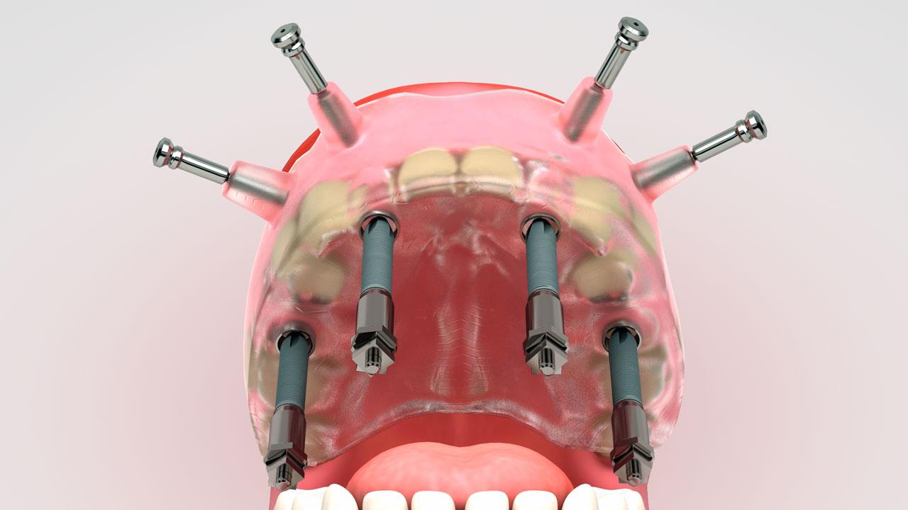 Infografia 3D dental de implantes