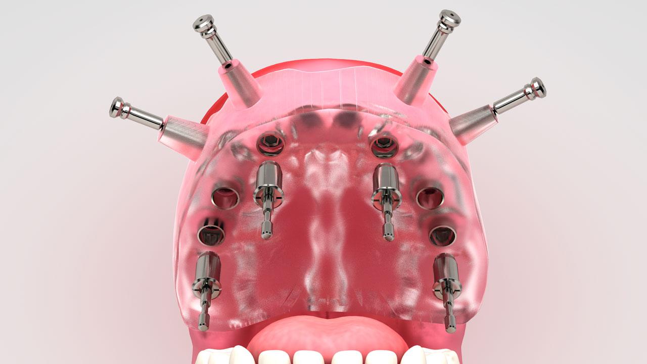 Infografías 3d medicina implantes