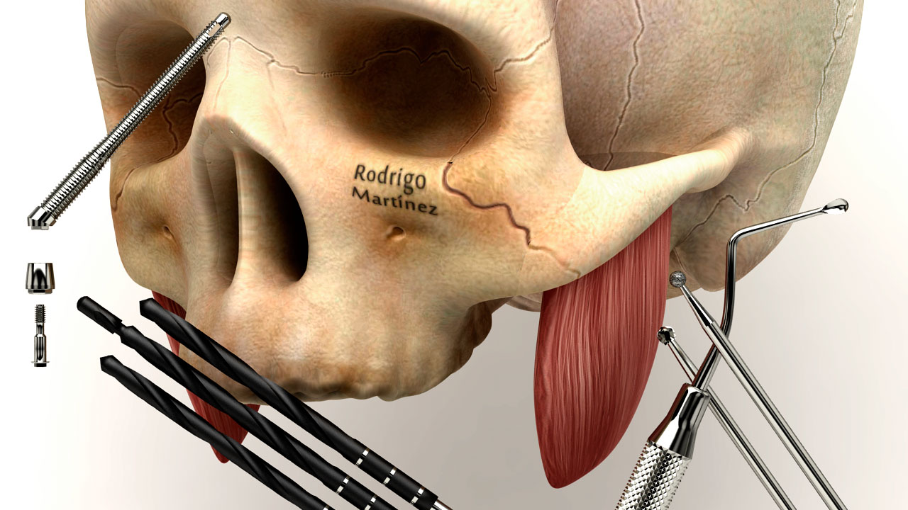 Infografías 3d medicina dental