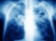 Tuberculosis-860x634.jpg