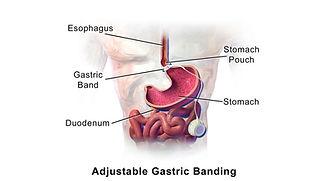 gastric banding image.jpg
