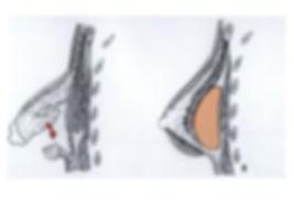 reconstrucción mamas tuberosas sevilla y jerez de la frontera