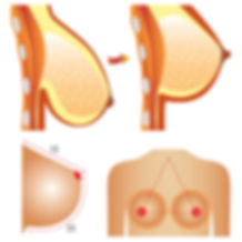 elevación de mamas (mastopexia) Sevilla y Jerez de la Frontera