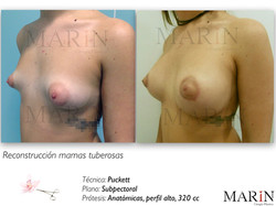fotos web.091