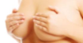 cirugía estética de la mama en Sevilla. Aumento de mamas en Sevilla. Reducción de mamas en Sevilla. Elevación de mamas en sevilla