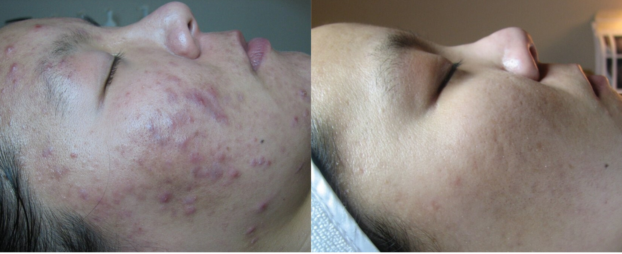 CLEAR YOUR ACNE IN 3-4 MONTHS_