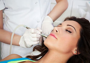 Microneedling in auckland