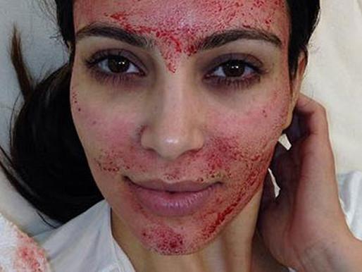 Micro-Needling AKA Vampire Facials