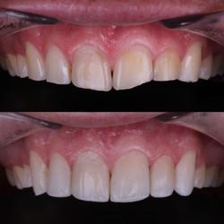 Odontología Cali