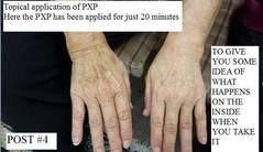 PXP healing Skin bruises