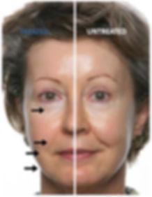 Galvanic Treatment