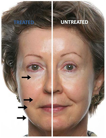 Galvanic Spa non-surgical skin rejuvenation procedure in Sabetian Natural Appearance Clinic auckland