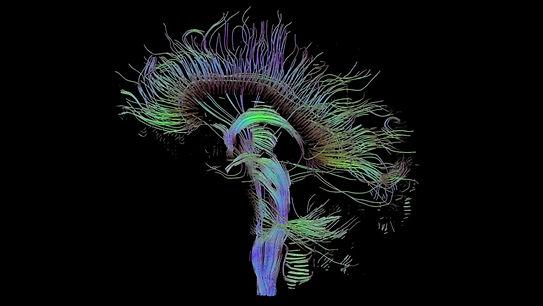 pnl-programacion-neurolinguistica.jpg
