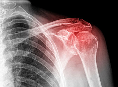 intrinsic shoulder pain isolated.jpg