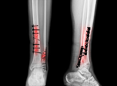 Fracture of leg bones. Reposition of bon