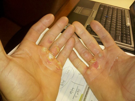 Caring For Your New Calluses
