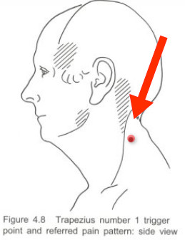 trapezius-trigger-point-1