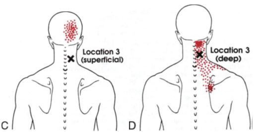 Photo Credit: Myofascial Pain and Dysfunction, Travell and Simons