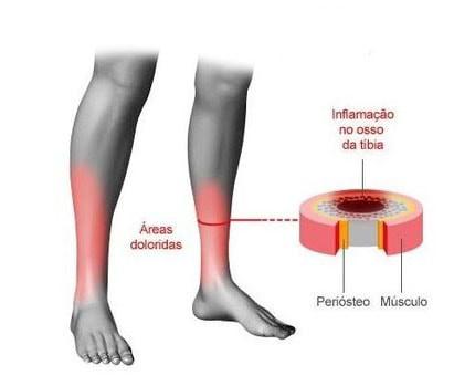 modelo inflamação canela