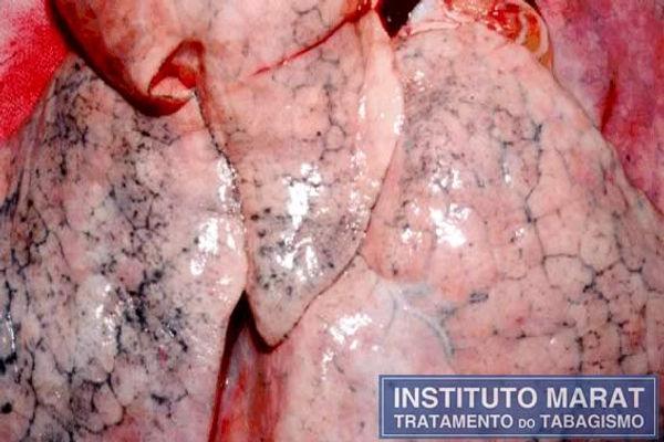Foto de um pulmão de uma pessoa saudável