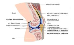 Bursite Infrapatelar