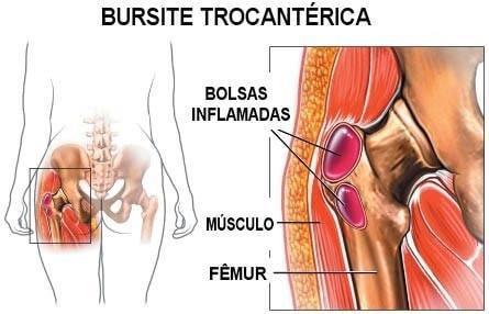 Modelo de Bursite Trocantérica