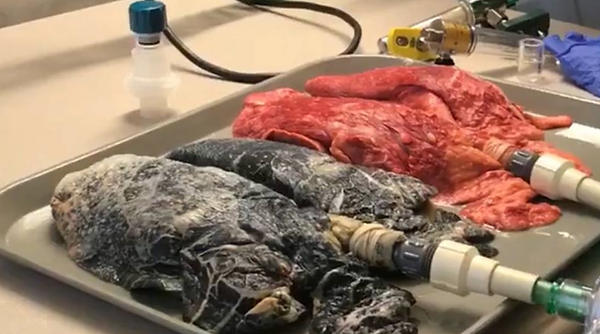 Foto de dois pulmões, um de um fumante e o outro de uma pessoa saudável