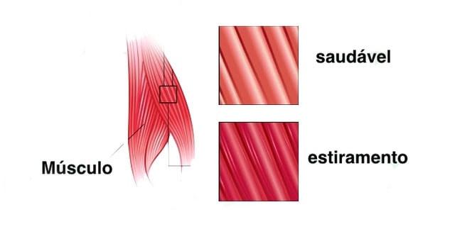 modelo estiramento muscular