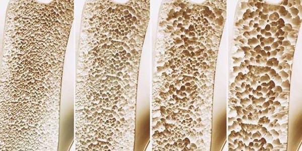 Modelos de ossos demostrando efeitos da osteoporose nos ossos do corpo humano