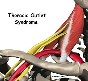 shoulder_thoracic_outlet_syndrome_intro0