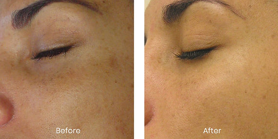 Hydrafacial Body Toxing London.jpg