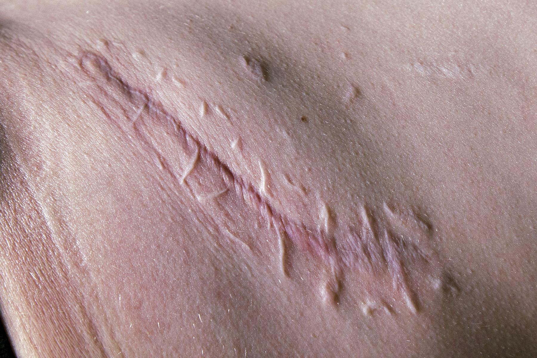 Abdominal Scar for website