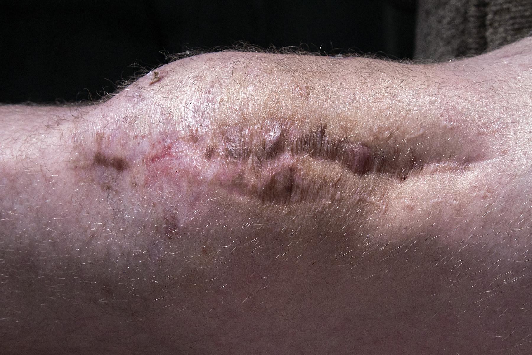 Knee Scar for website (9555)