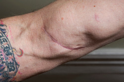 recrop  Paul injury view 4 (8873)