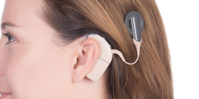 Improving-cochlear-implant-image.jpg