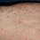 Thumbnail: FIX MY SKIN BALM: Psoriasis, Eczema and Acne