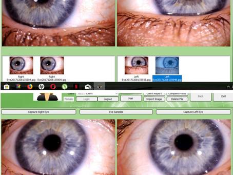 Iridology eye changes