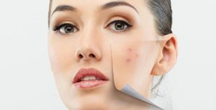 acne-treatment-surgery.jpg