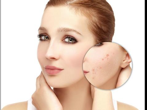 Прыщи на лице: причины и лечение!