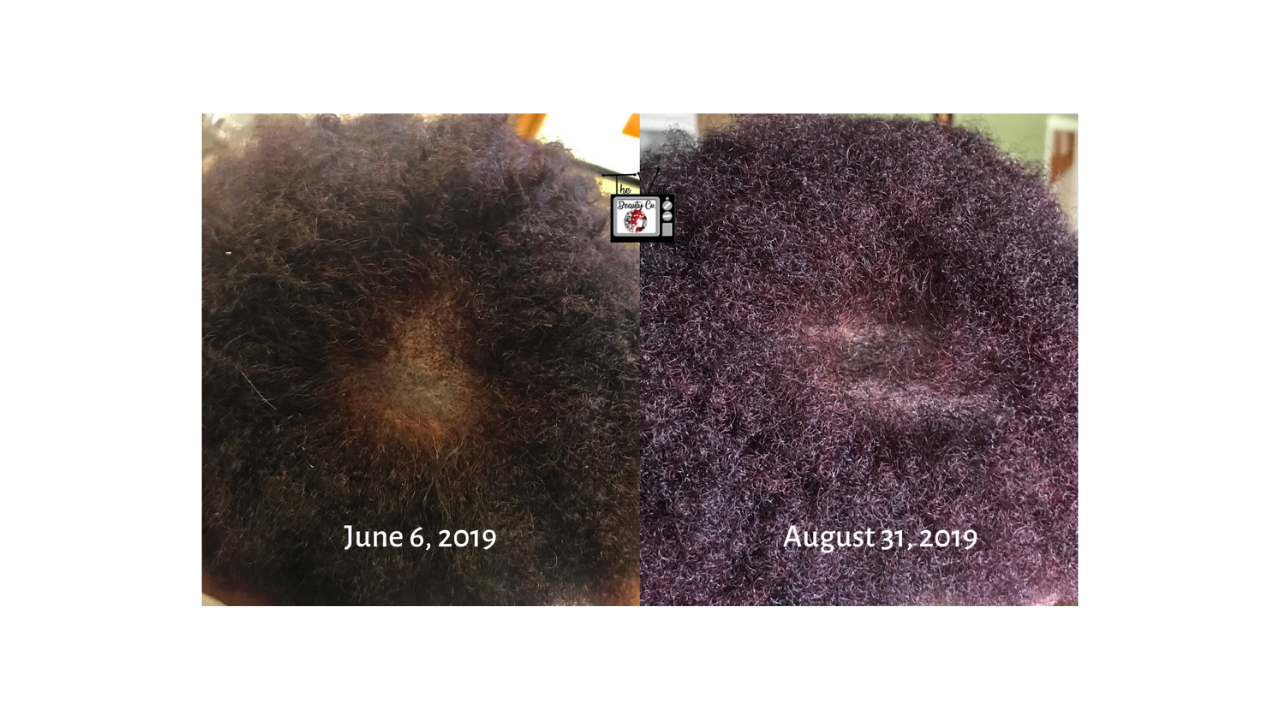 Hair Regrowth with Restoration Oil